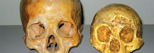 The skull of Homo floresiensis (right) is much smaller than ours (left).