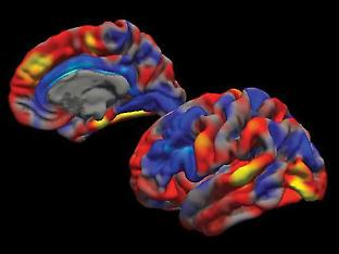 A spatial map of the cortical surface area portion of the multimodal brain pattern, demonstrating increases (red) and decreases (blue) associated with ADHD symptoms.