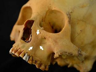 The skull of a young woman from Quiani-7 shows abnormal bone formation (arrowed) that may be associated with scurvy-related haemorrhage of the infraorbital artery. Credit: A. Snoddy