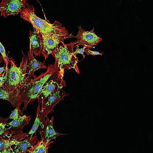 Microscopy imaging of metastatic cancer cells. Credit: drimafilm/adobe