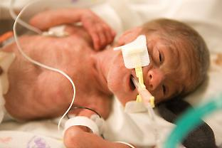 Many babies born prematurely suffer from different kinds of inflammation.