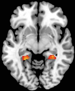 Figure 3. Memory-related brain activity in the left and right parahippocampal gy