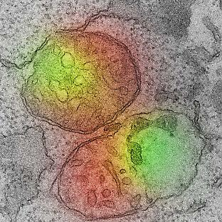 An electron microscope image of mitochondria undergoing herniation. On the botto