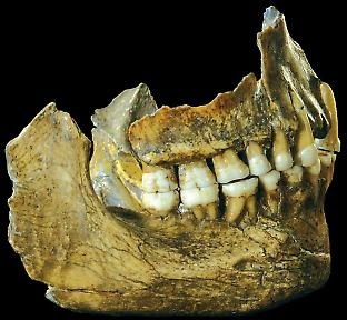 The complete jaw of Spy II, with small and thin dental calculus deposits that pr