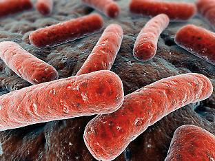 Legionella causes about 300 infections per year in Australia.
